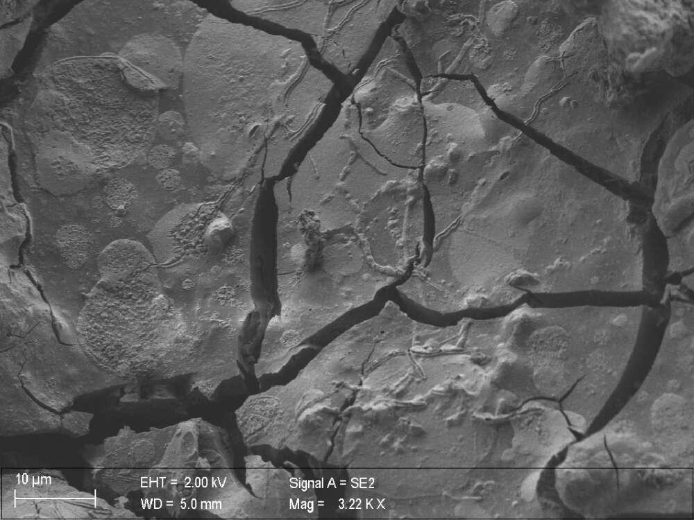 """Hallan neuronas """"perfectamente conservadas"""" en un cerebro «horneado» por la erupción del Vesubio"""